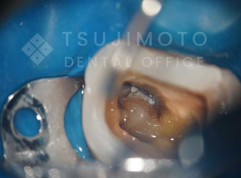 マイクロスコープで拡大した歯の根