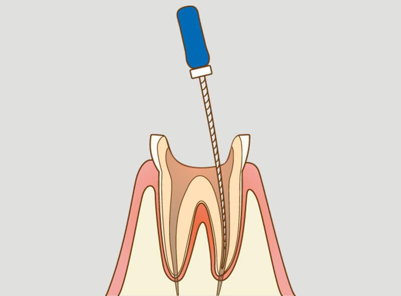 歯の根の消毒