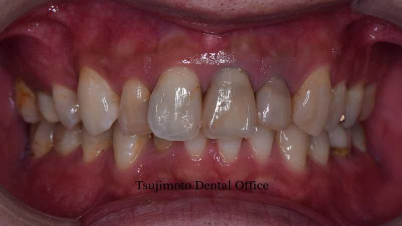 前歯の病変
