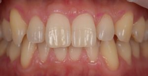 エナメルケア,メインテナンス,予防歯科