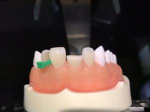 歯の詰め物,ダイレクトボンディング,審美歯科治療,コンポジットレジン
