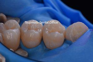 ラバーダム防湿,セミナー,ラバーダム防湿セミナー,歯の詰め物,ダイレクトボンディング