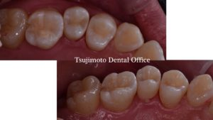 銀歯,詰めもの,ラバーダム防湿,コンポジットレジン,ダイレクトボンディング,マイクロスコープ,むし歯