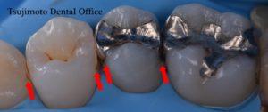 銀歯,むし歯,ラバーダム防湿,マイクロスコープ,歯の詰め物,コンポジットレジン,ダイレクトボンディング