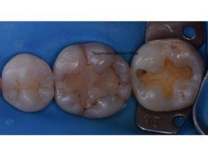 むし歯,ラバーダム防湿,審美歯科治療,ダイレクトボンディング,歯のつめもの,コンポジットレジン