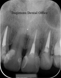 歯の根の治療,神経の治療,根管治療,歯内療法,マイクロスコープ