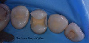 セラミック,白い歯,歯のつめもの,コンポジットレジン,ダイレクトボンディング,自費治療,ラバーダム防湿