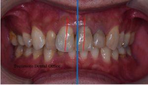 歯の根の治療,神経の治療,根管治療,歯内療法,マイクロスコープ,むし歯