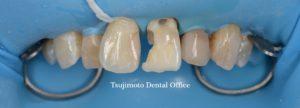 歯の根の治療,神経の治療,根管治療,歯内療法,マイクロスコープ,むし歯,歯のつめもの,ダイレクトボンディング,コンポジットレジン