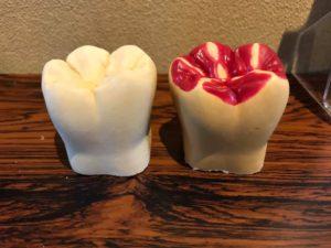 かみ合わせ,歯の形,補綴