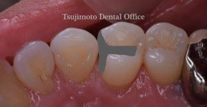 むし歯,歯がしみる,ダイレクトボンディング,白い歯,歯のつめもの,コンポジットレジン,銀歯