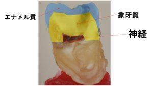 エナメル質,象牙質,神経,むし歯