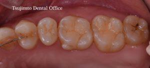 ダイレクトボンディング・むし歯・歯の詰めもの・コンポジットレジン