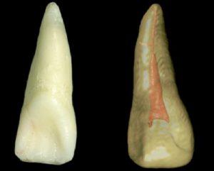 歯の神経,根の治療,根管治療,歯内療法,膿