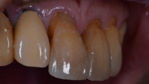 審美歯科、前歯すきっぱ、前歯虫歯、ダイレクトボンディング、CR、コンポジットレジン修復