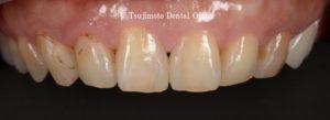 前歯、前歯詰め物、前歯詰め物変色、前歯ダイレクトボンディング、前歯CR