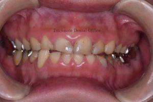 酸蝕症、ダイレクトボンディング、審美修復、コンポジットレジン