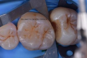 ダイレクトボンディング・顕微鏡歯科治療・マイクロスコープ・コンポジットレジン・CR・ラバーダム防湿