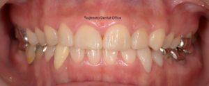 酸蝕症・ダイレクトボンディング・審美・審美歯科・コンポジットレジン修復・コンポジットレジンやり直し・コンポジットレジン色が気になる