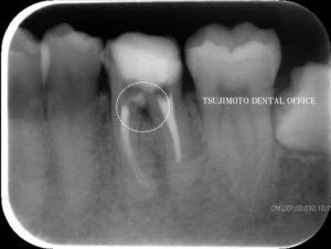 穿孔・パーフォレーション・歯内療法・根管治療・マイクロスコープ